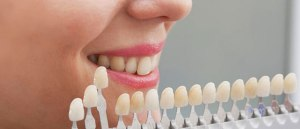 bnr_bg_teeth-whitening